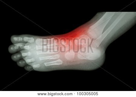 Arthritis And Injury At Ankle  :  Film X-ray Of Child 's Foot ( Side View ) ( Lateral )