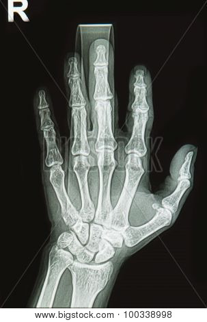 Wrist And Hand  X-rays Image Show Fracture  Bone On Finger Splint