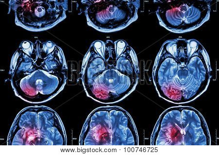 Film Mri ( Magnetic Resonance Imaging ) Of Brain