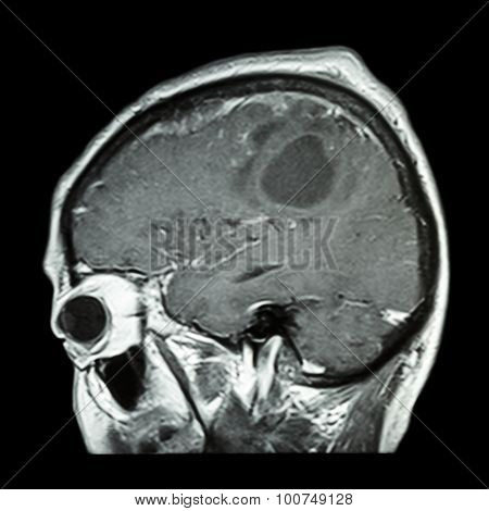 Film Mri Of Brain With Brain Tumor