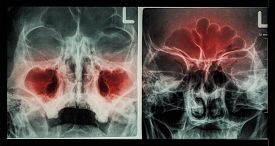 stock photo of sinuses  - Film X - JPG