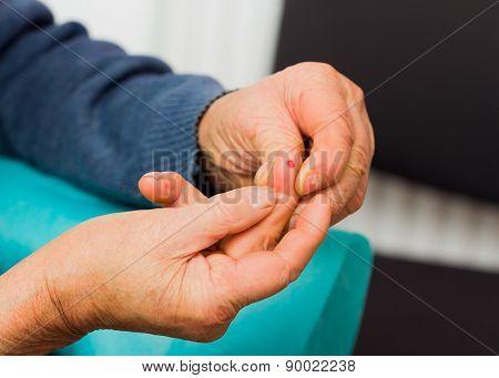 Elderly Hands After Medical Examination