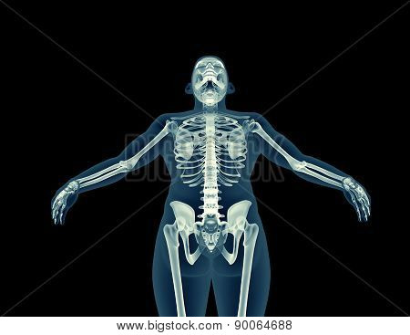 X-ray Image Of A Human Body