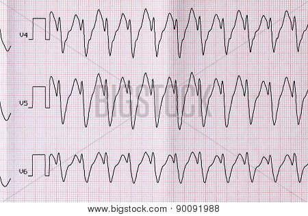 Ecg With Paroxysm Correct Form Of Atrial Flutter