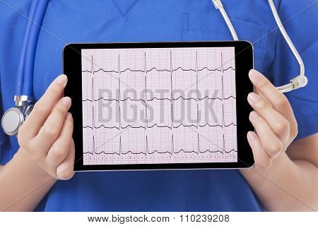 Asian Doctor Or Nurse Holding Tablet Computer Showing An Ekg