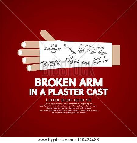Broken Arm In A Plaster Cast.