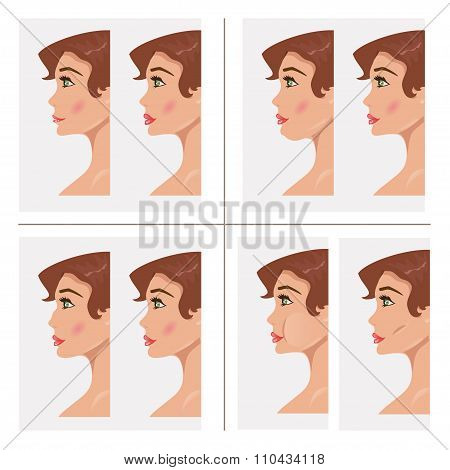 Collection Plastic Procedures. Vector Illustration