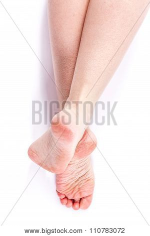 Female Legs With Overdried Dehydrated Dry Skin On Heels Closeup