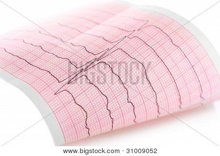 Cardiogram. Macro Of Ecg Graph
