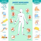 Spine Problem. Joints Diseases Pain. Arthritis, Osteoarthritis Symptoms, Medication Treatment poster