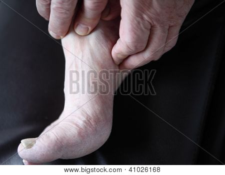 man checks his sore foot