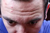 foto of pimples  - Acne pimples on the face of a young man - JPG