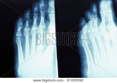 X-ray of feet, closeup