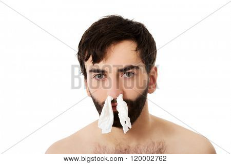 Sick man with tissues in nose.