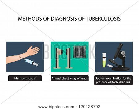 TB diagnostic methods. X-rays of light. Mantoux test. Examination of sputum. World Tuberculosis Day.