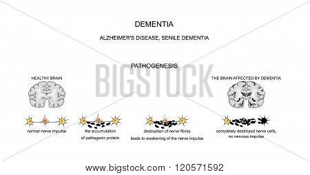 Alzheimer s disease senile changes of the brain