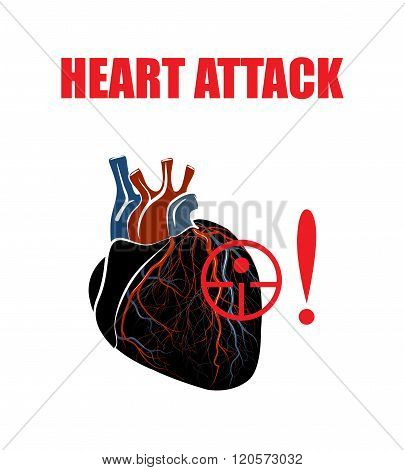 Heart. Myocardial infarction. illustration of a human heart heart attacks