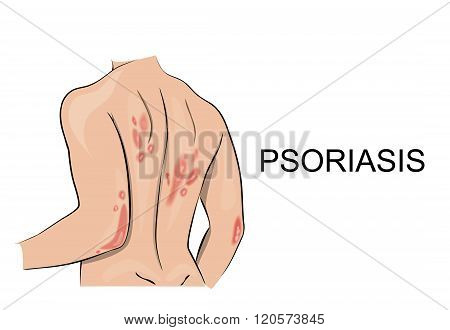 illustration of the human body psoriatic rash. Dermatology. Allergic reaction vector.