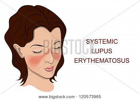Illustration of the main symptom of SLE purple butterfly on her nose and cheeks.