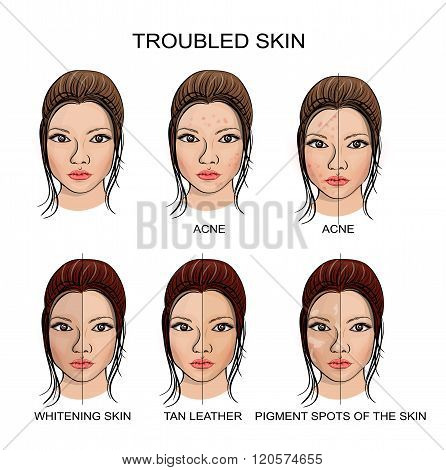 illustration of healthy and problematic skin. vector