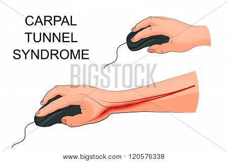 illustration of pain in carpal tunnel syndrome