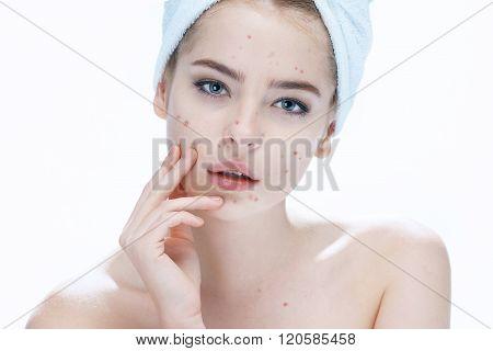 Ugly problem skin girl.