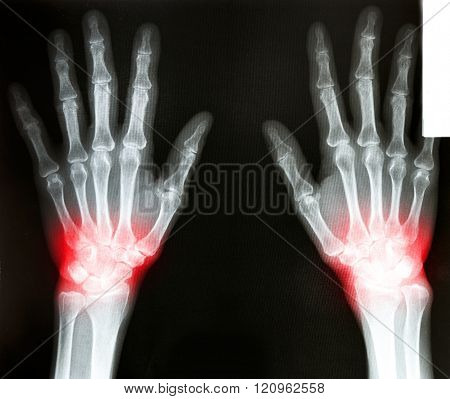 Photo of a film X-Ray scan human