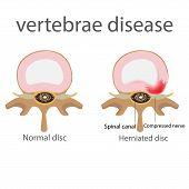 Постер, плакат: hernia vertebrae disease