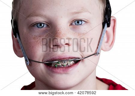 Boy With Braces