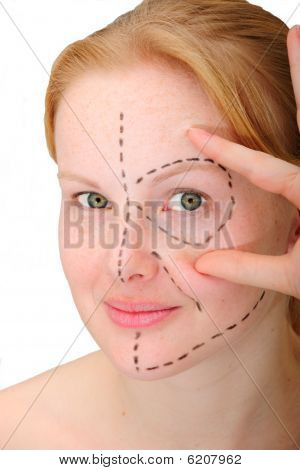 Woman´s Face Before Plastic Surgery, Face Lift