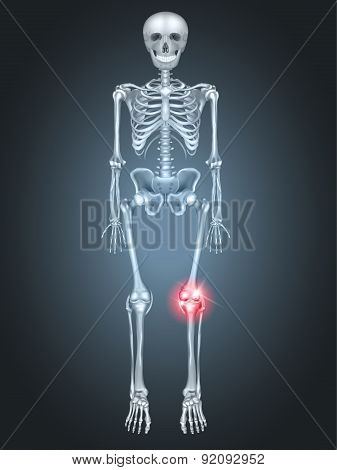 Skeleton With Knee Joint Pain