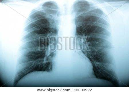 Radiology, classical x ray of the mens chest
