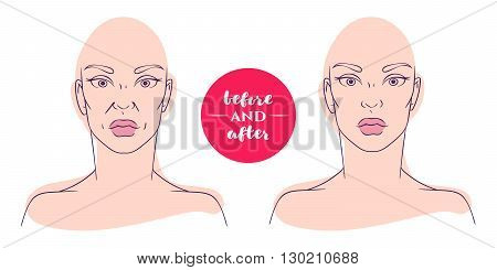 Portrait of a woman before and after with cosmetic defects. Plastic surgery and correction of deficiencies in appearance. Correction of nasolabial folds