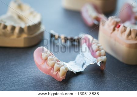 Artificial Replacement Teeth On A Dark Table