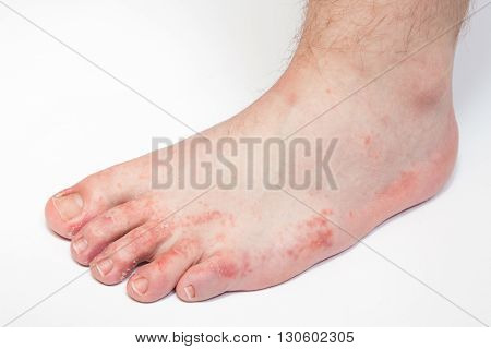 dermatitis on foot, athlete's foot disease problem