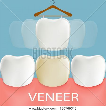 Dental veneers. Tooth anatomy. Stock vector illustration.
