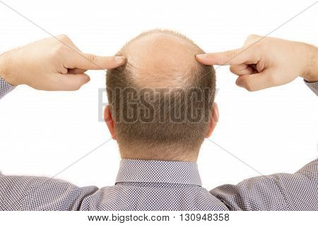 Man alopecia baldness or hair loss - Close up head two hands isolated