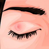 Pimple On The Eye. Conjunctivitis. Redness And Inflammation Of The Eye. Vessels In The Eye. For Info poster