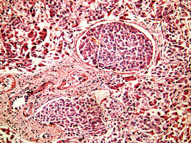 stock photo of histology  - Hepatocellular cancer of liver of a human metastasises in vessels photomicrograph panorama as seen under the microscope 200x zoom - JPG