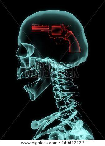 3D illustration of Xray of skull with gun instead of brain.