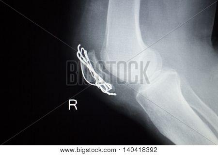 Knee Joint Orthopedics Implant Xray