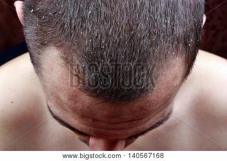 Psoriasis Skin Man