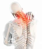 3d Illustration, Neck Painful - Cervical Spine Skeleton X-ray, Medical Concept. poster