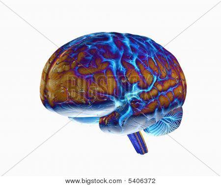 Brain 1 Diff