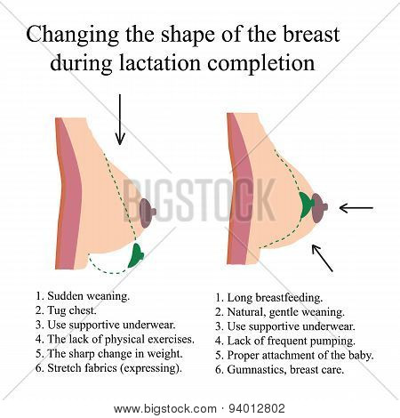 Changing the shape of the breast during lactation completion.