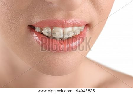 Teeth Alignment. Braces. Beautiful Woman Smiling.