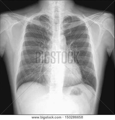 pneumothorax seen in chest radiography which want to intercostral drainage