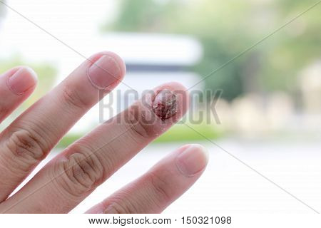 Fungal Nail Infection And Damage On Human Hand. Finger With Onychomycosis