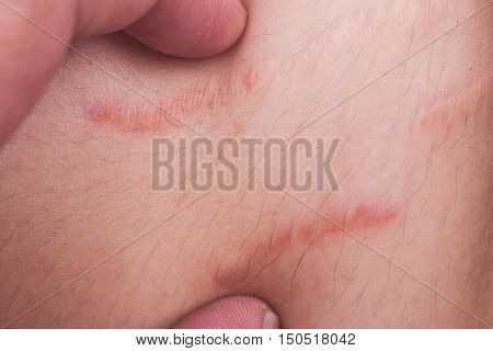 Closeup On Finger Embrace Stretch Marks Or Cellulite On Belly