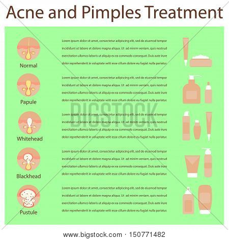 Types of acne pimples human skin poster, various cosmetics, cream in tube. Facial treatments infographic. Modern flat design. Womens Beauty care. Vector illustration eps10